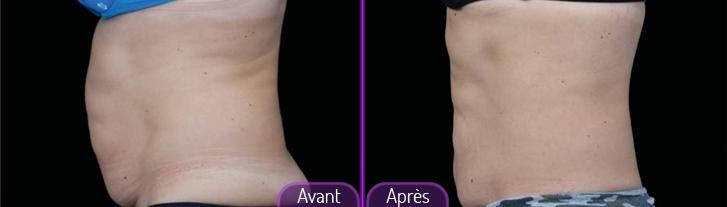 emsculpt-avant-apres01