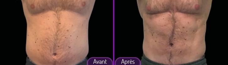 emsculpt-avant-apres02
